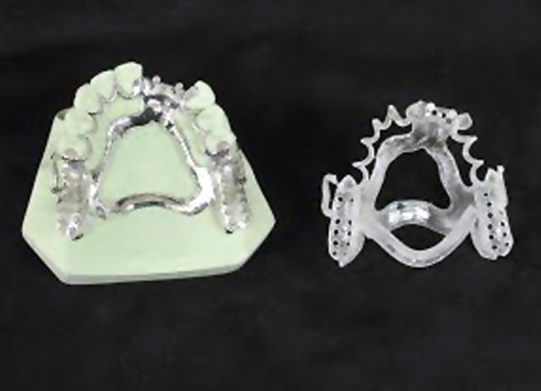 Print casting patterns for removable partial dentures made with MED610 material on the compact, versatile Objet30 Dental Prime 3D Printer